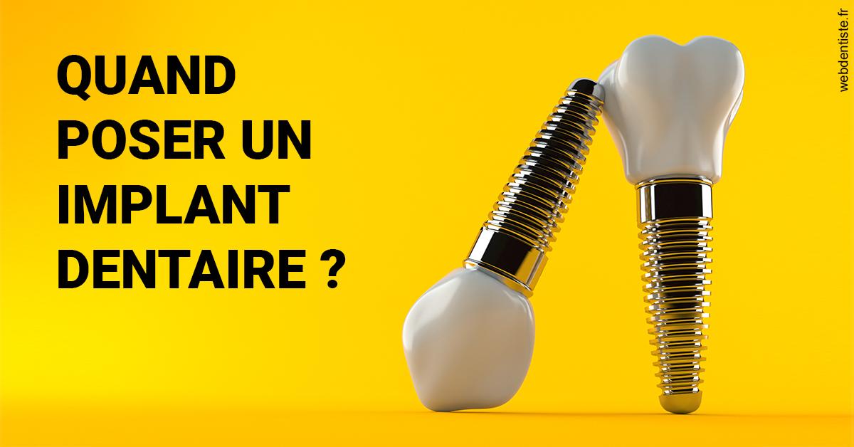 https://dr-bonnel-marc.chirurgiens-dentistes.fr/Les implants 2