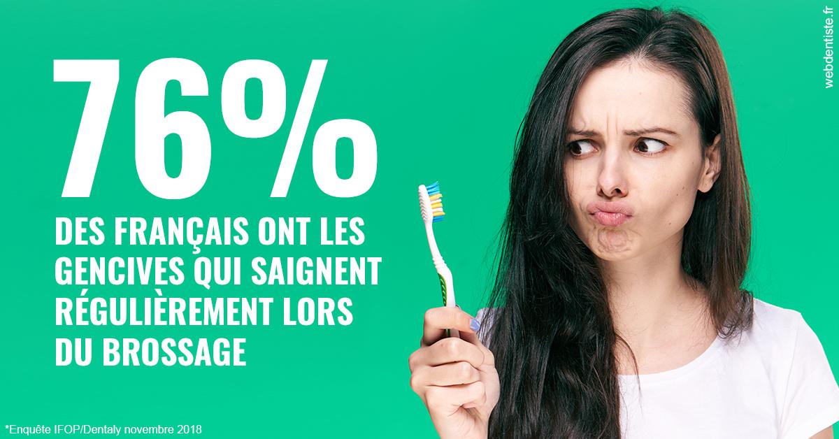 https://dr-bonnel-marc.chirurgiens-dentistes.fr/76% des Français 1