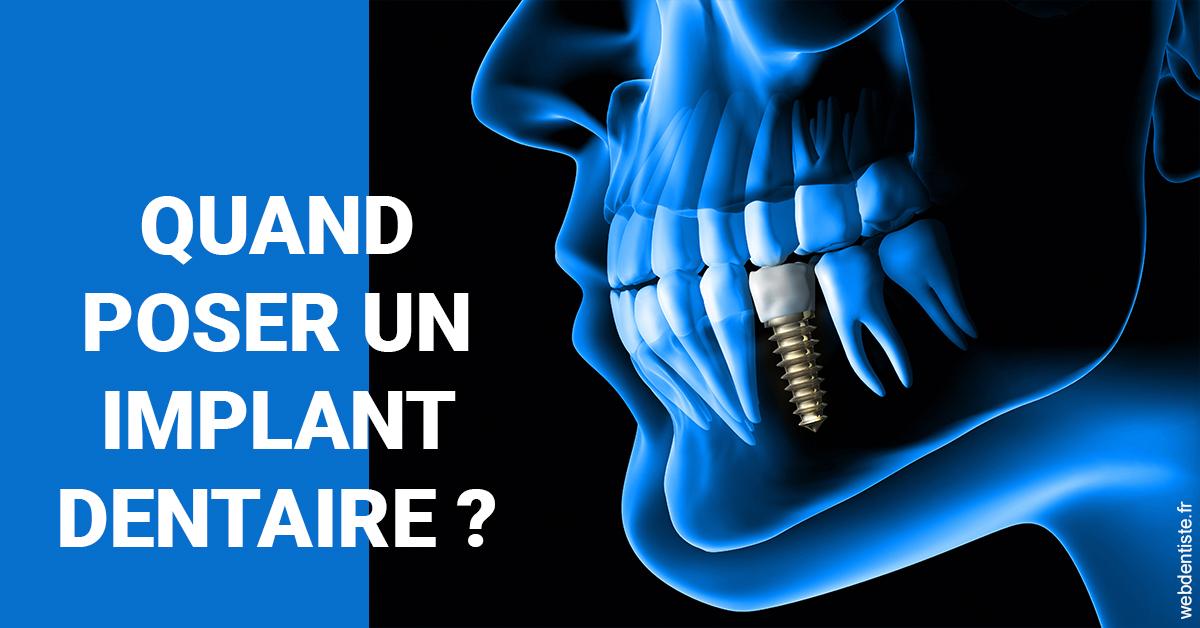 https://dr-bonnel-marc.chirurgiens-dentistes.fr/Les implants 1